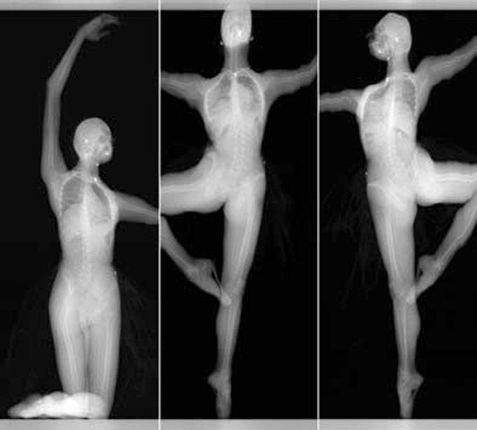 Секс и рентгеновские снимки в истории медицины